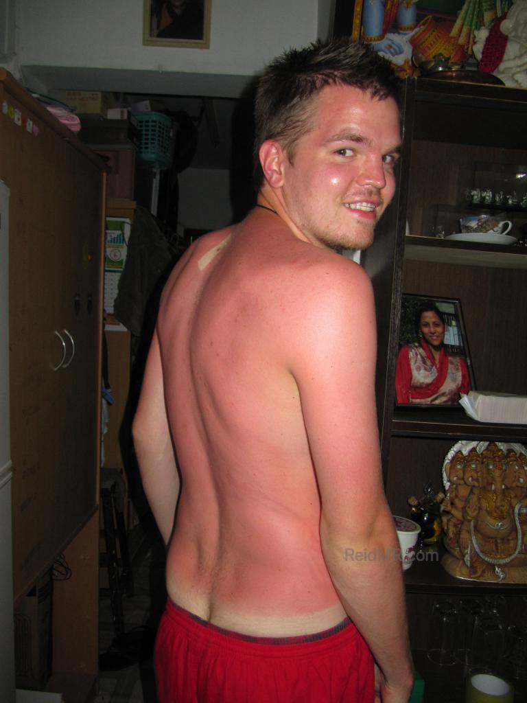 My red sunburned back, with three of my four cheeks showing
